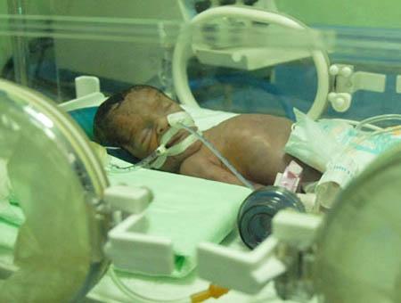 Fallece el bebé prematuro cuya madre había muerto en un atentado del PKK