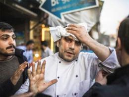 Uno de los heridos el jueves en un restaurante de Kilis por un cohete del YPG