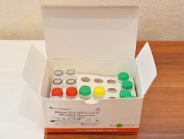 Turquia test deteccion coronavirus