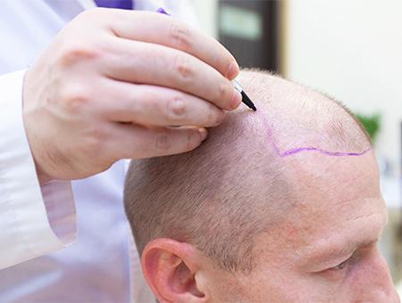 Injerto capilar trasplante turquia