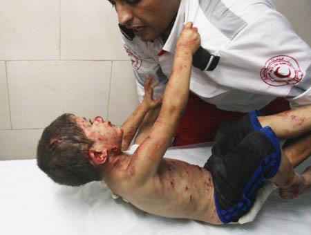 Gaza bombardeos ninos