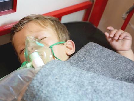 Siria nino herido idlib