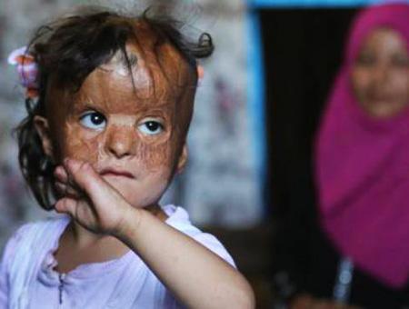 Fatma nina herida siria